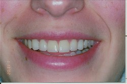 Veneers dental service