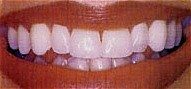 teeth whitening trays service
